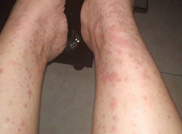 Alergi Gatal Merah Merah Sampai Sulit Bernafas - KabarSumbawa